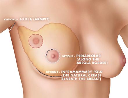 Hidden Scar Lumpectomy Diagram