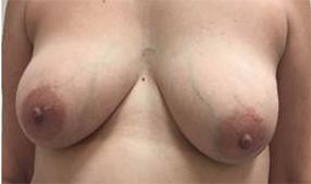 Hidden Scar Lumpectomy Results