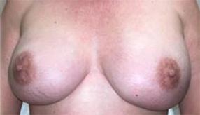 Hidden Scar Mastectomy Results